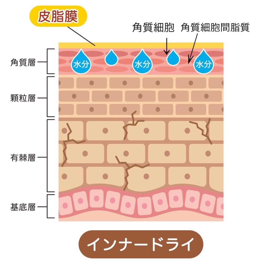 冬の乾燥肌対策には、肌の潤いを保つ保湿成分が重要